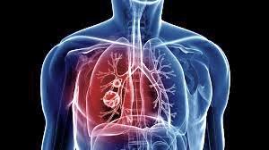 Quantifying Chronic Obstructive Pulmonary Disease